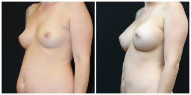 Breast Implants West Palm Beach - Before and After High Profile Breast Implants West Palm Beach