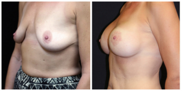 West Palm Beach Breast Implants - Before and after Breast Augmentation West Palm Beach