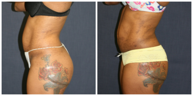 West Palm Beach Liposuction - Before and After West Palm Beach Body Contouring