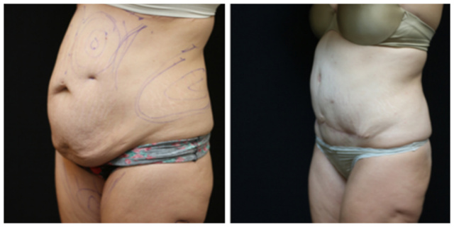 West Palm Beach Liposuction - Before and After Liposuction West Palm Beach