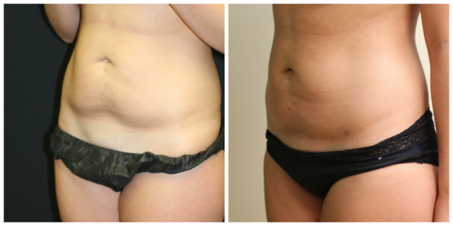 West Palm Beach Fat Transfer - Before and After Fat Transfer West Palm Beach