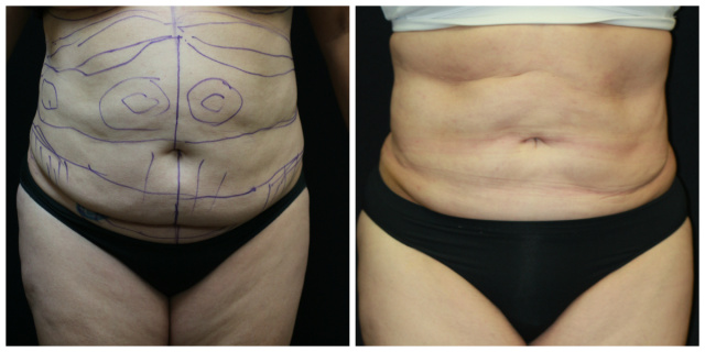 West Palm Beach Liposuction - Before and after Liposuction
