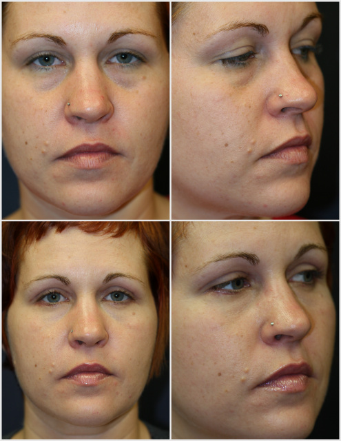 West Palm Beach blefaroplastia