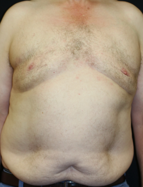 West Palm Beach Gynecomastia - After Male Breast Reduction West Palm Beach