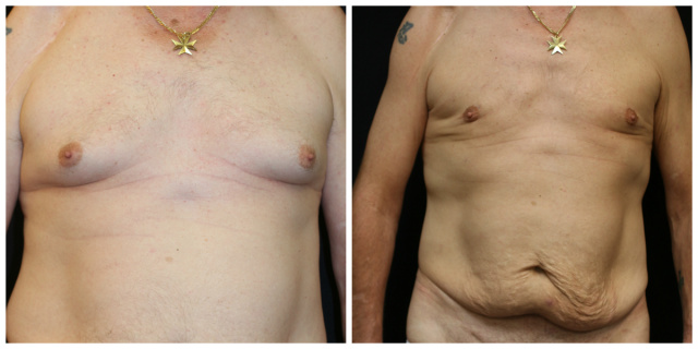 West Palm Beach Male Breast Reduction - Before and After Male Breast Reduction West Palm Beach