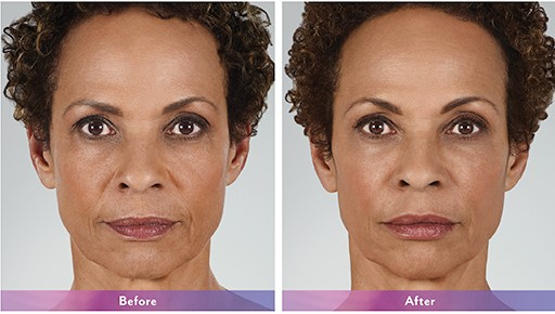 West Palm Beach Dermal Fillers - Injectable Fillers West Palm Beach