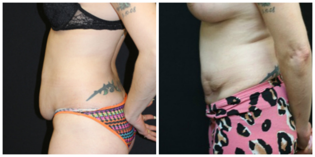 West Palm Beach Mini Abdominoplasty - Before and after Mini Tummy Tuck West Palm Beach