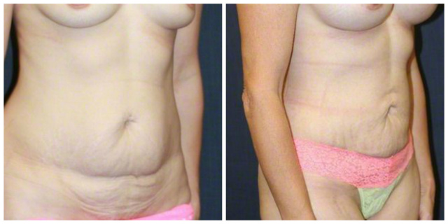 West Palm Beach Mini Tummy Tuck - Before and after West Palm Beach Mini Abdominoplasty
