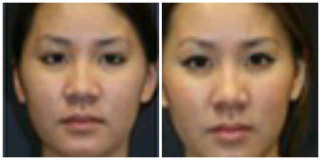 West Palm Beach nonsurgical rhinoplasty - Before and after nonsurgical rhinoplasty West Palm Beach