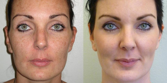 Obagi Skin Care West Palm Beach - Before and After