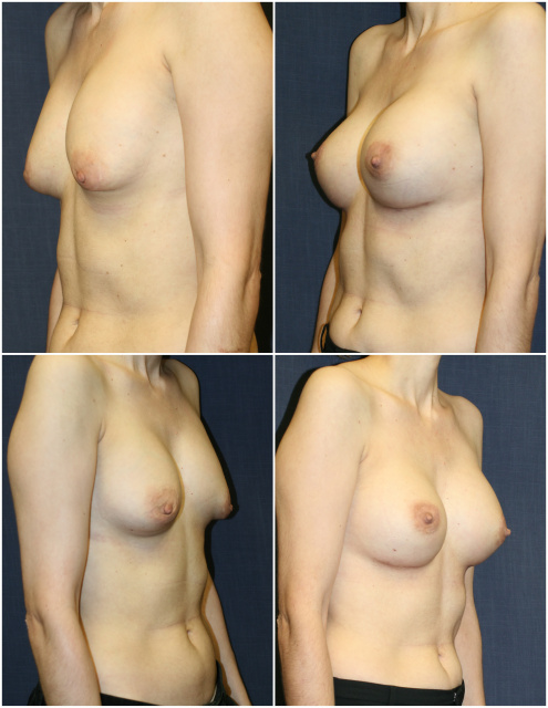 West Palm Beach Breast Implant Exchange and Breast Implant Revision West Palm Beach