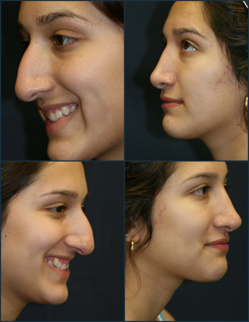 West Palm Beach Nose Surgery