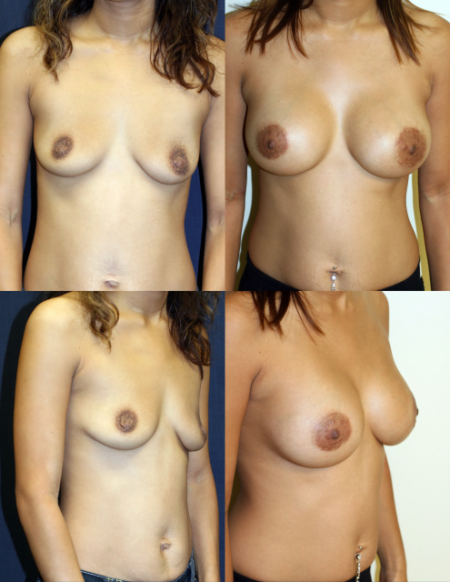 West Palm Beach Breast Implants - Before and After Natrelle Breast Implants West Palm Beach and circum vertical mastopexy