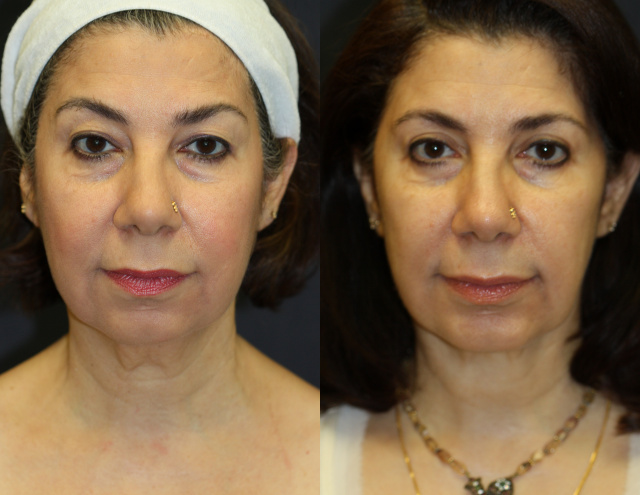 West Palm Beach Facelift - Before and After Face Lift West Palm Beach