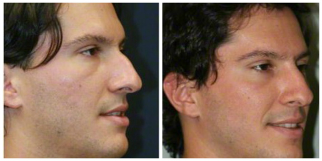 West Palm Beach Nonsurgical Rhinoplasty - Before and After Radiesse West Palm Beach