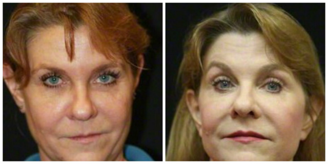 West Palm Beach Restylane Lyft - Before and After Restylane Lyft West Palm Beach