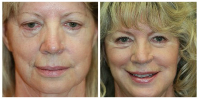 West Palm Beach Restylane Silk - Before and After Restylane Silk West Palm Beach