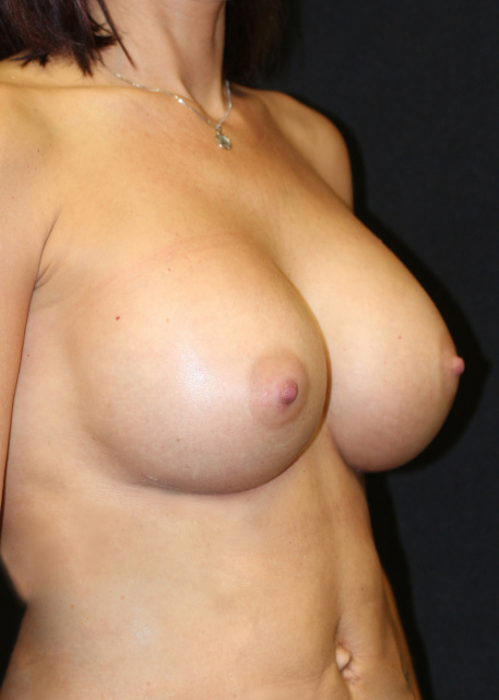 Post West Palm Beach Breast Implants for Upper pole Fullness - Post Sientra Breast Implants West Palm Beach