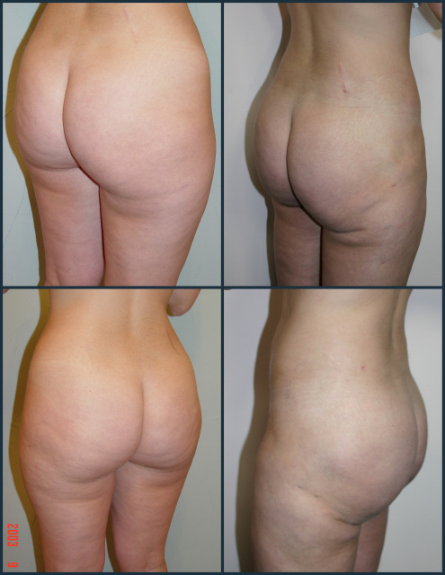 Liposuction West Palm Beach