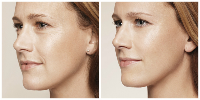 West Palm Beach Dermal Fillers - Dermal Fillers West Palm Beach
