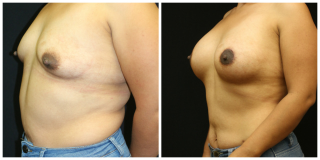 West Palm Beach Breast Lift for Tuberous Breasts - Before and after Tuberous Breasts Breast Lift West Palm Beach