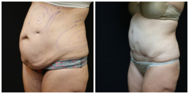 West Palm Beach Tummy Tuck - Before and After West Palm Beach Abdominoplasty