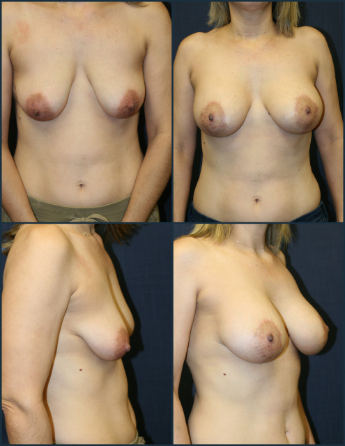 Vertical Mastopexy West Palm Beach - Before and After West Palm Beach Breast Lift