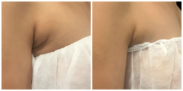West Palm Beach Coolsculpting - Before and After Coolsculpting West Palm Beach