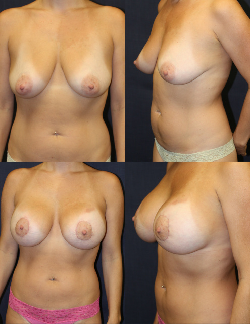West Palm Beach Breast Lift with implants - Before and After Implants with Mastopexy West Palm Beach