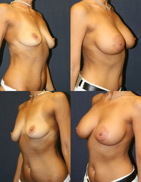 Periareolar Breast Lift West Palm Beach - Before and After West Palm Beach Mastopexy