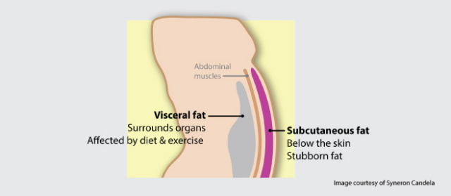 Visceral Fat West Palm Beach - Coolsculpting West Palm Beach