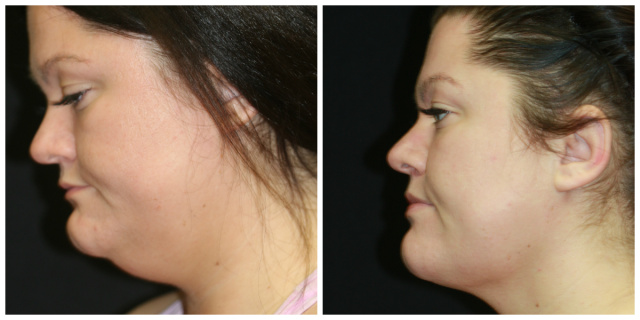 Palm Beach Double Chin - Before and After Double Chin SurgeryPalm Beach