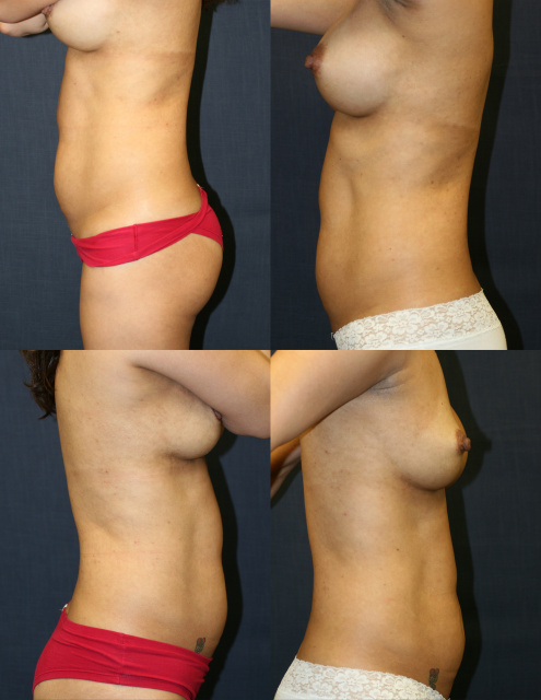 West Palm Beach Breast Implant Exchange - Breast Implant Revision West Palm Beach