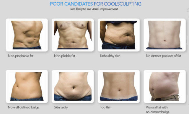 West Palm Beach Coolsculpting - Poor Candidates for Coolsculpting West Palm Beach