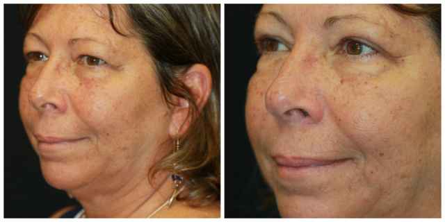 West Palm Beach Eyelids Surgery - Before and After Upper Blepharoplasty West Palm Beach