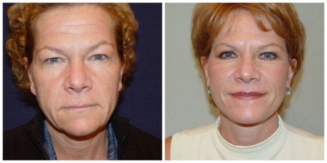 West Palm Beach Facelift Revision - Before and After Facelift Revision West Palm Beach