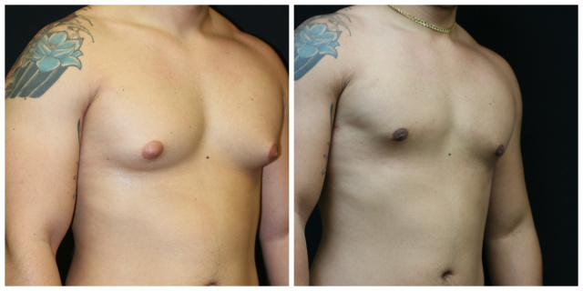 West Palm Beach Male Breast Reduction - Before and After Male Breast Reduction to correct Gynecomastia West Palm Beach
