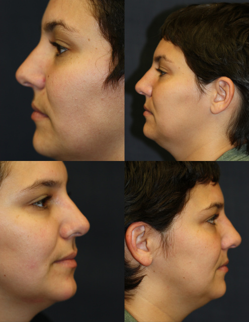 West Palm Beach Rhinoplasty