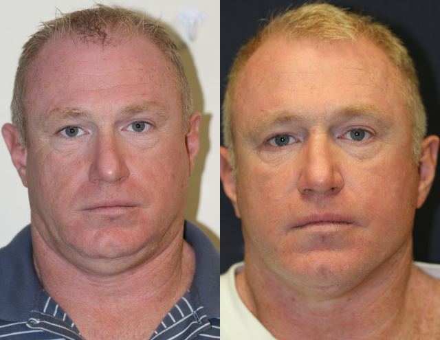 West Palm Beach Necklif -Before and After  Neck Lift West Palm Beach