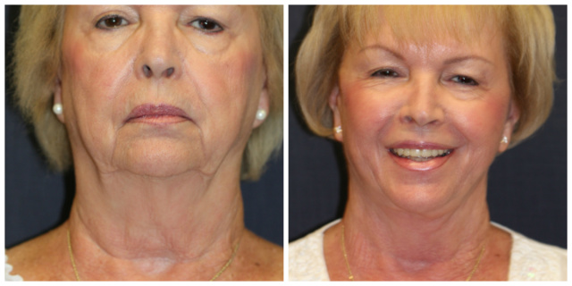 West Palm Beach Neck Lift - Before and After Neck Lift West Palm Beach