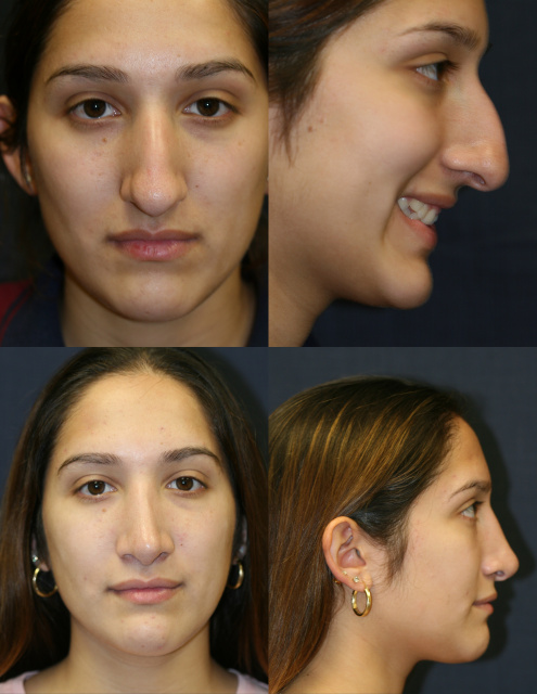 Rhinoplasty West Palm Beach - Before and After Rhinoplasty West Palm Beach