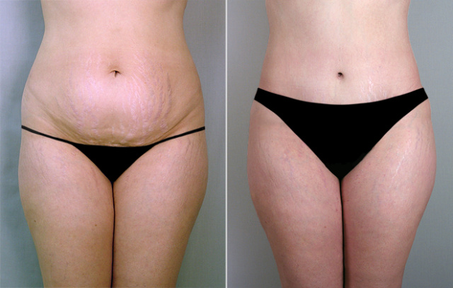 Tummy Tuck in West Palm Beach - Before and After Abdominoplasty West Palm Beach