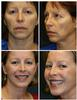 Facelift with Perioral Laser