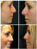 Revision Rhinoplasty in West Palm Beach