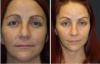 West Palm Beach Eyelids Surgery