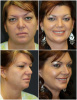 Blepharoplasty Transformation