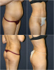 Liposuction - Abdomen, Flanks, Back Folds, Thighs