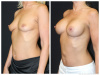 Palm Beach Breast Implants