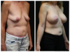 West Palm Beach Breast Lift