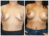 Delray Beach breast lift